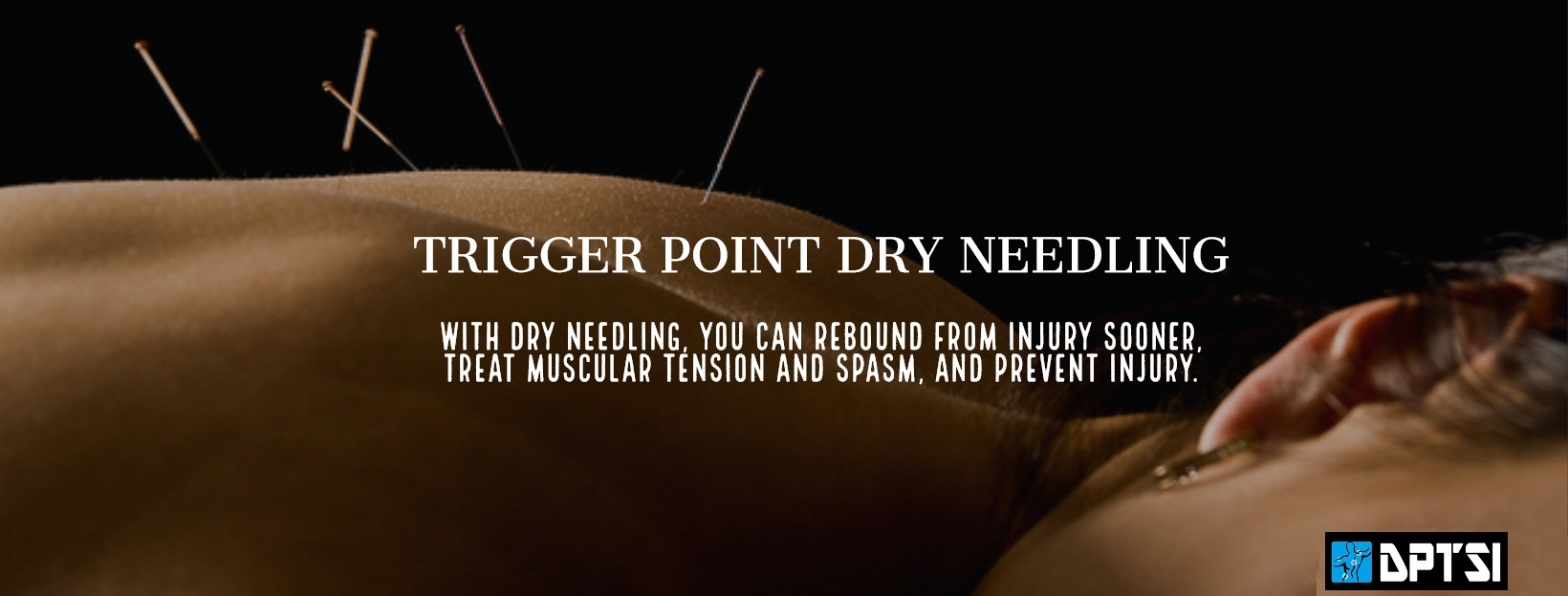 image-751998-Dry_Needling_Cover_Photo2.jpg